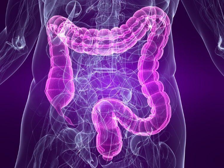 síndrome de intestino o colon irritable