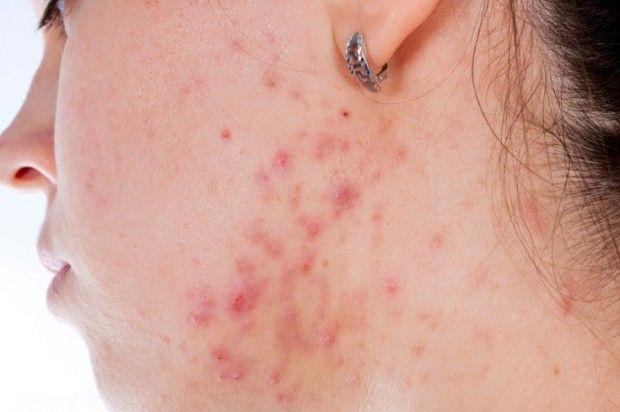 Medidas para combatir el acné