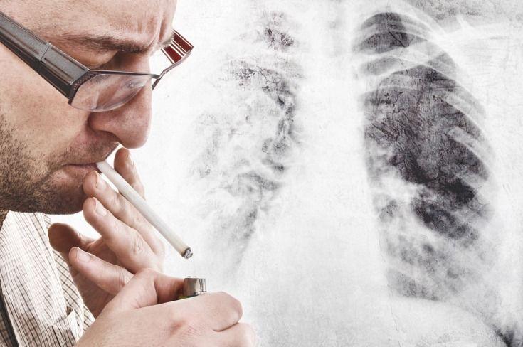 Medidas para prevenir el cáncer de pulmón