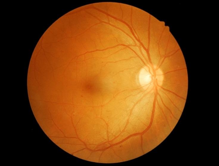 Medidas para combatir la degeneración macular