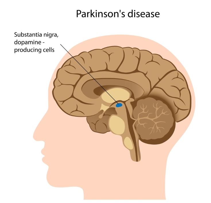 Enfermedad de Parkinson Tratamiento