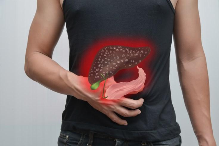 Enfermedades hepáticas frecuentes: hepatitis y cirrosis