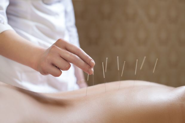 Los beneficios de la acupuntura para la salud